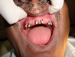 Implant placement in maxilla