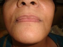 Post operative face profile