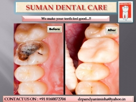 intensive-careios-teeth-and-filing