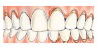 Gingivitis-gum-disease