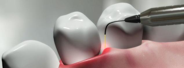 laser-dentistry-main