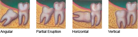 types of impaction